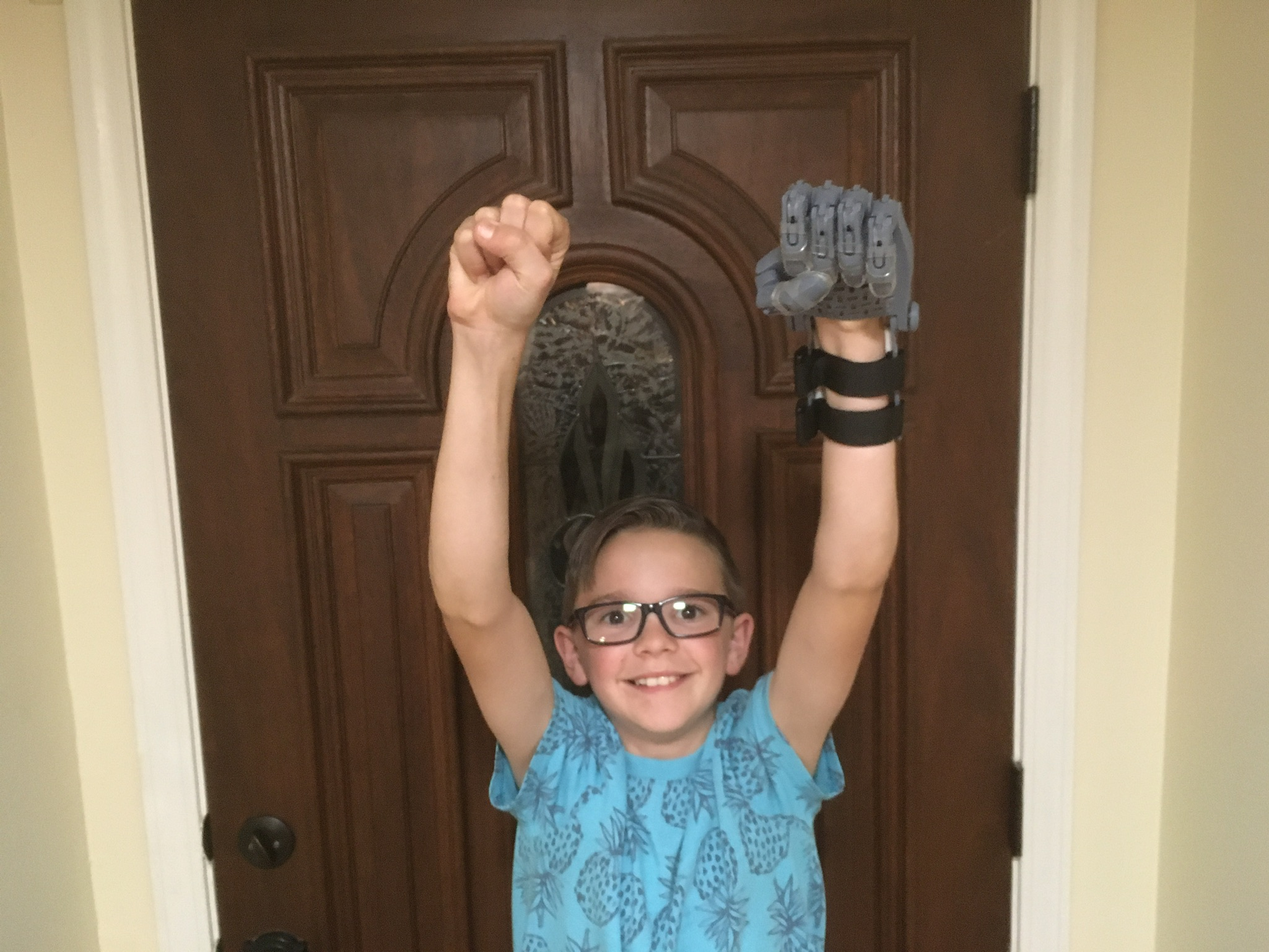 boy raises arms with artificial hand